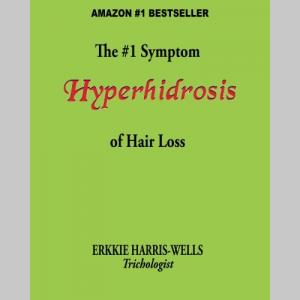 The #1 Symptom of Hair Loss Hyperhidrosis